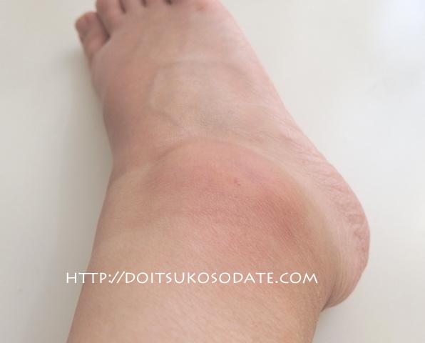 蚊に刺されて大きく腫れた足首
